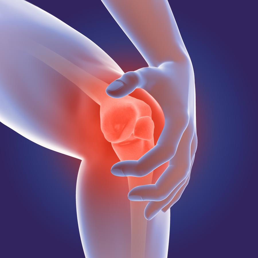 Etude de marché arthrose - Arcane Research